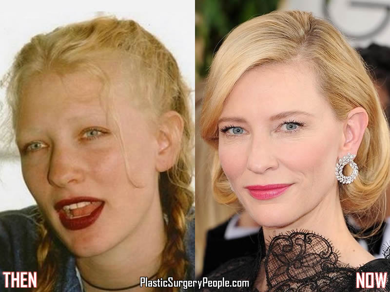 Cate Blanchett Before & After