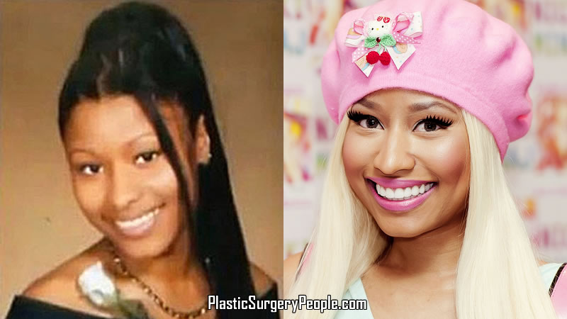 Nicki Minaj Face Comparison
