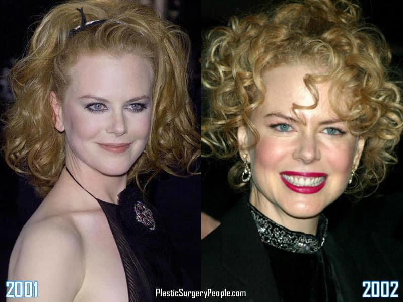 Nicole Kidman - 2001 to 2002