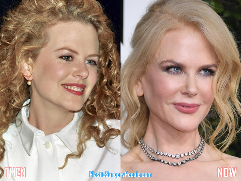 Nicole Kidman Before & After Plastic Surgery