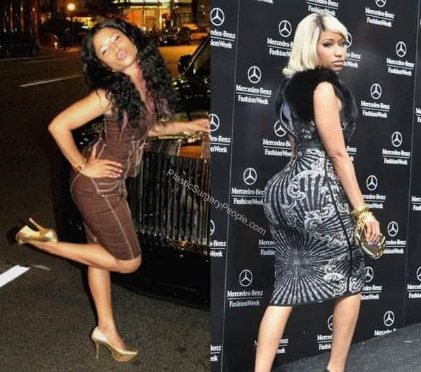 Does Nicki Minaj have fake butt implants?