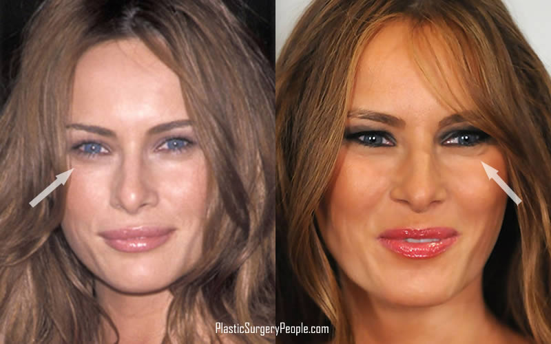 Melania's beautiful eyes doesn't seem like they need any work