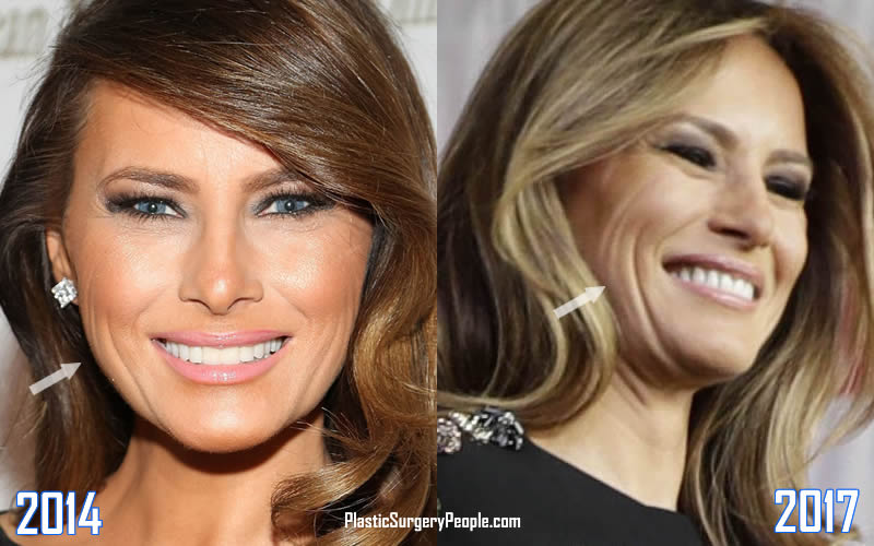 Melania's face wrinkles are quite visible