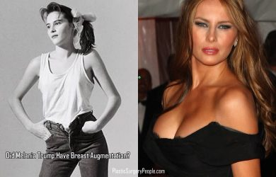 Melania Upper Body Transformation