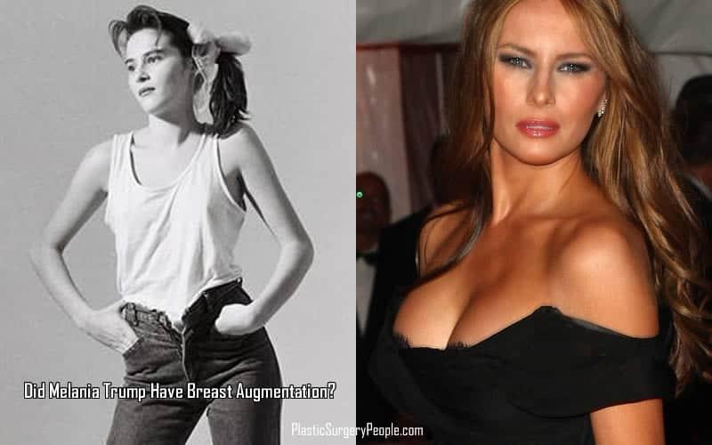 Melania Upper Body Transformation