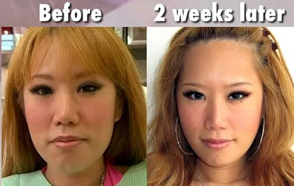 Xiaxue Botox Before & After