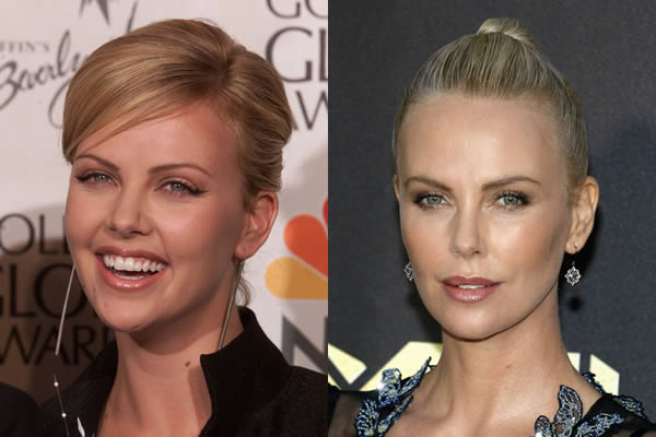Has charlize theron had cosmetic sugery procedures voltagebd Choice Image