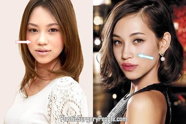 Kiko Mizuhara may have had a nose job
