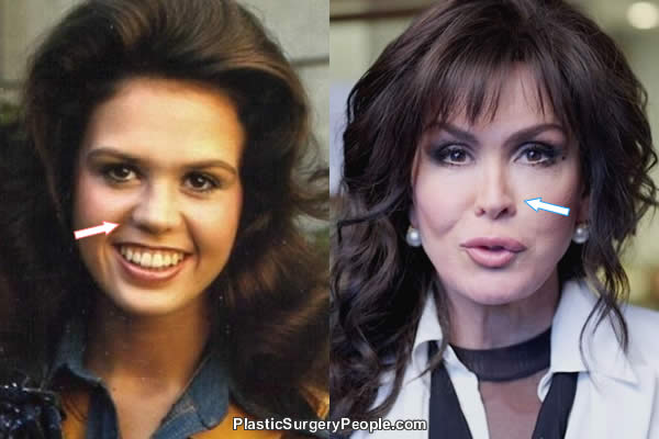 Did Marie Osmond Have Plastic Surgery Before Amp After Photos