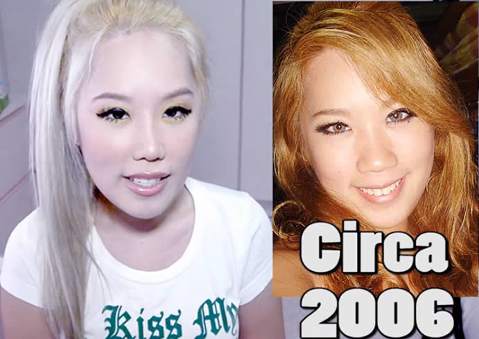 Xiaxue Nose Before and After