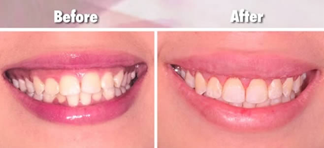 Xiaxue Gum Reduction