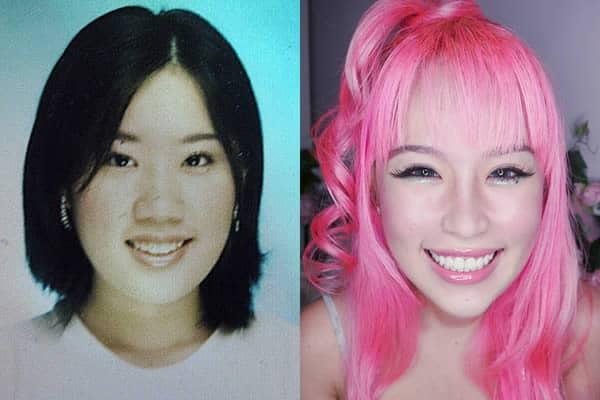 Xiaxue Before Surgery Meet Xiaxue, A Chinese...