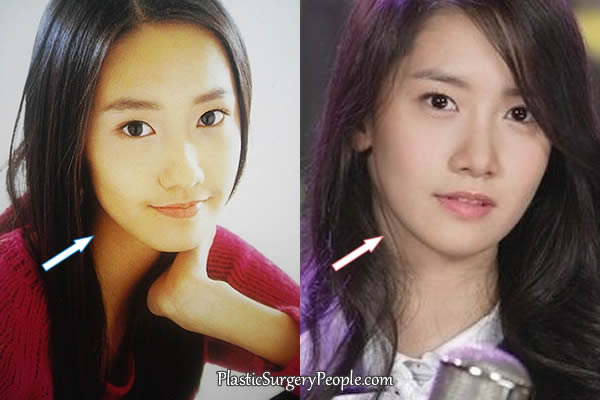 Yoona jawline and chin comparison