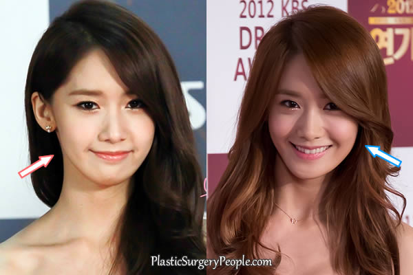 Yoona face cheeks before and after