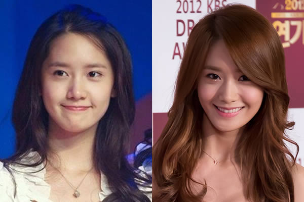 Did Yoona Go Under The Knife To Get Into Snsd