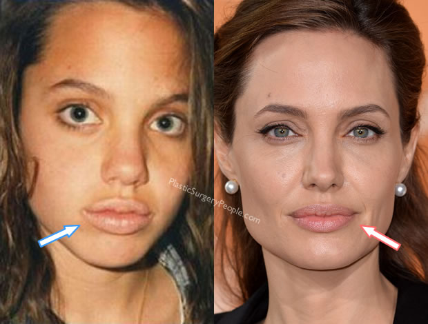 Angelina Jolie lip injections before and after