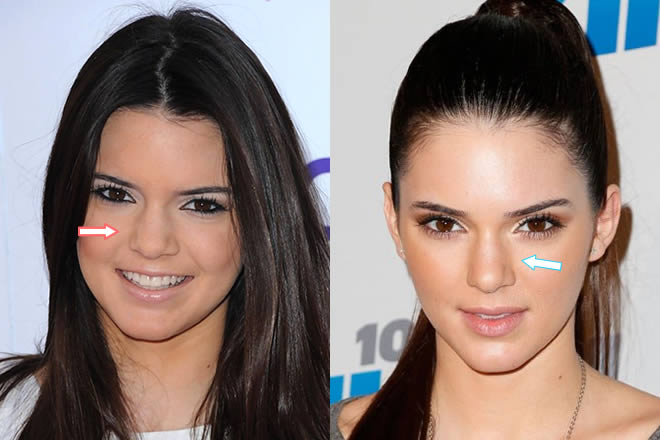 Kendall's nose before and after nose job?