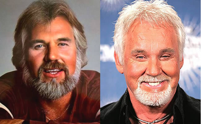 Do You Like Kenny Rogers Plastic Surgery Before And After Photos