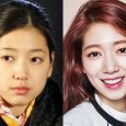 Park Shin Hye before and after plastic surgery?