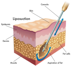 1) Liposuction for Men