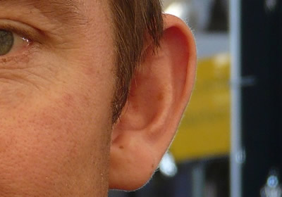 6) Ear Surgery for Men