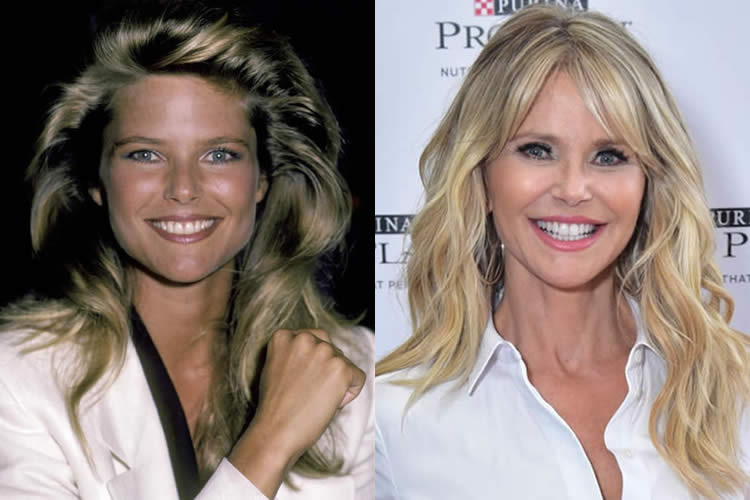 Christie Brinkley Before and After