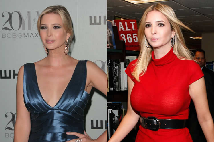 Did Ivanka Trump Have Boob Job?