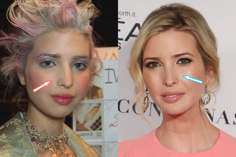 ivanka trump plastic surgery revealed before amp after 2018