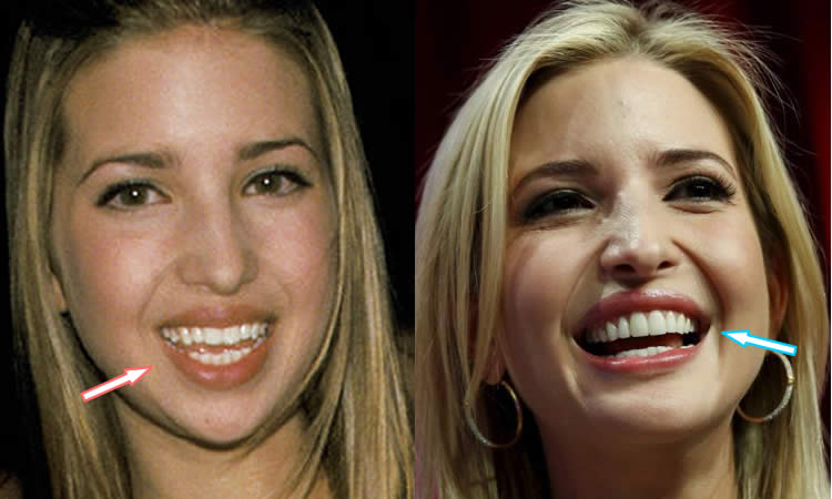 Ivanka Trump Teeth Before and After
