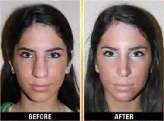 Jen Selter Nose Job Before & After - Front View