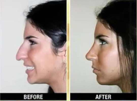 Jen Selter Nose Job Before & After - Side View
