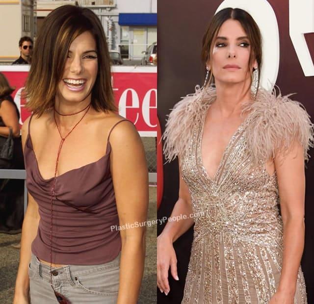 Did Sandra Bullock have a boob job?