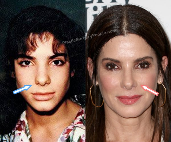 Has Sandra Bullock had a nose job?