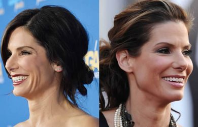 Has Sandra Bullock Had Plastic Surgery?