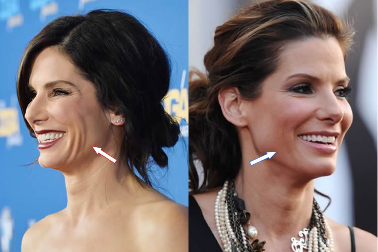 Sandra Bullock Facelift Before and After