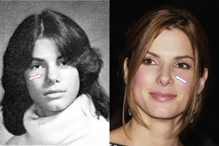 Sandra Bullock Nose Job Before and After