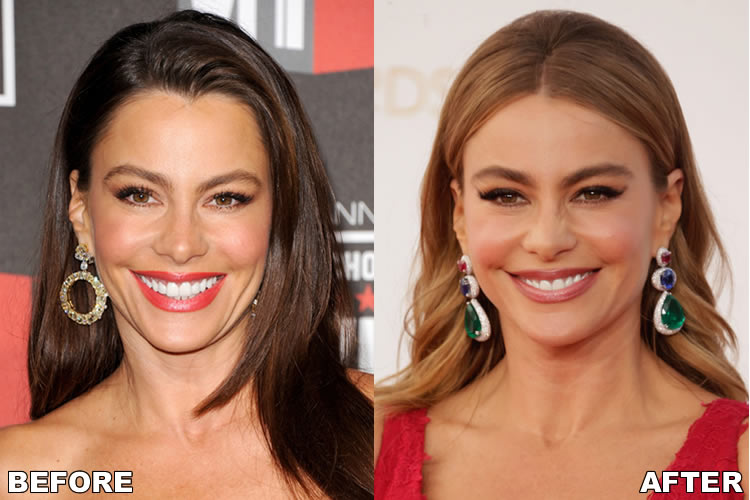 Sofia Vergara Face Before and After