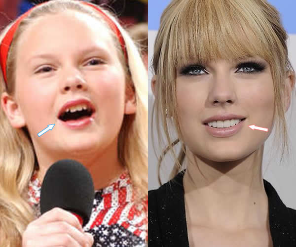 did taylor swift get plastic surgery before amp after photos