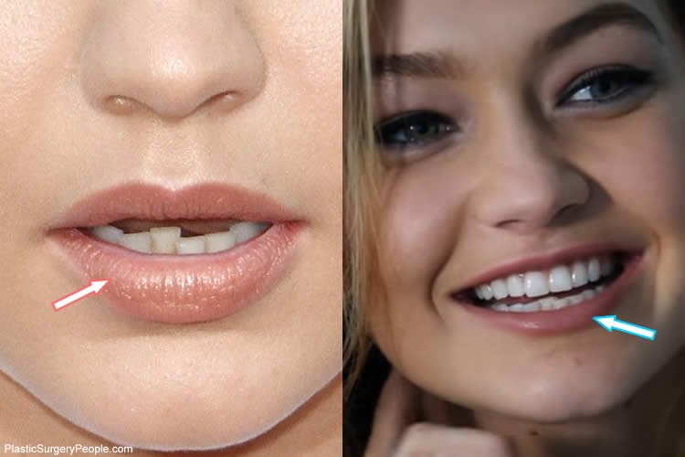 Gigi Hadid's Teeth