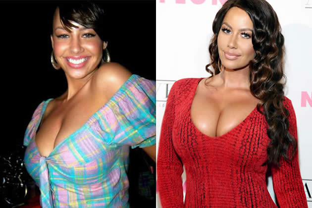 Amber Rose before and after plastic surgery?