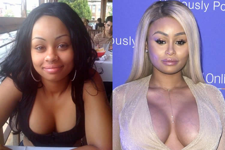 Has Blac Chyna had a boob job?