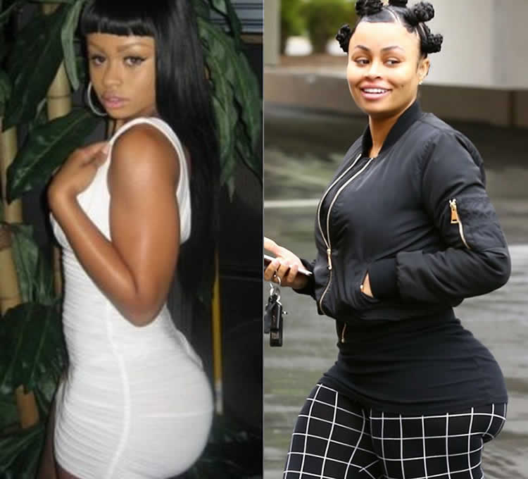 Does Blac Chyna have bum implants?