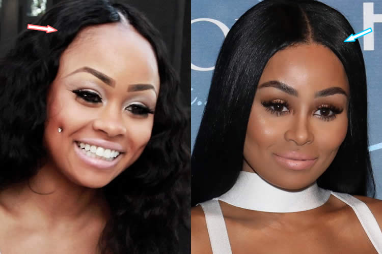 Blac Chyna hairline before and after