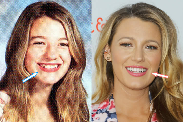 Blake Lively's Teeth