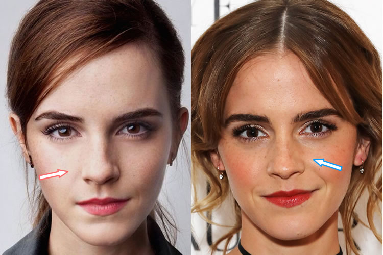 Has Emma Watson Had a Nose Job?