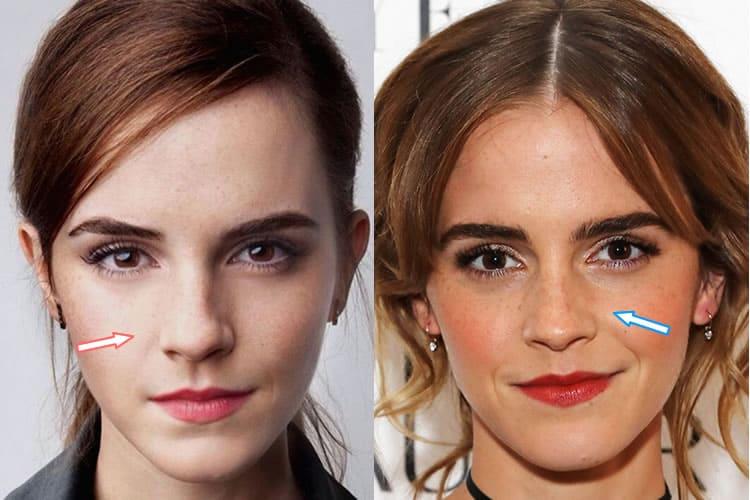 Emma Watson Nose Job Emma Watson Cos...