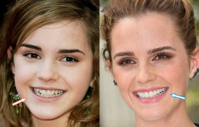 Emma Watson's Teeth Before and After