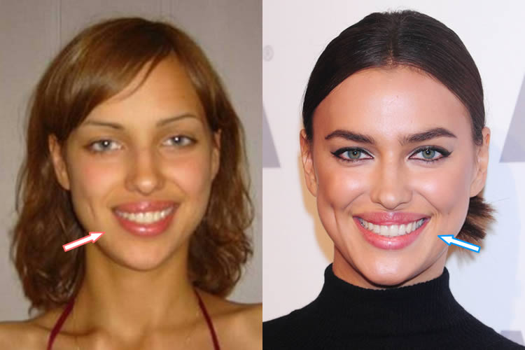Did Irina Shayk Get Lip Fillers