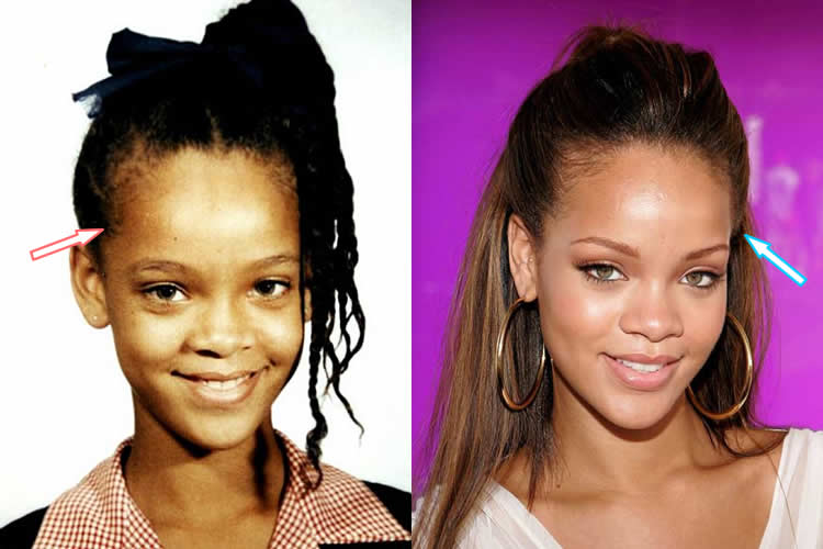 Rihanna's big forehead