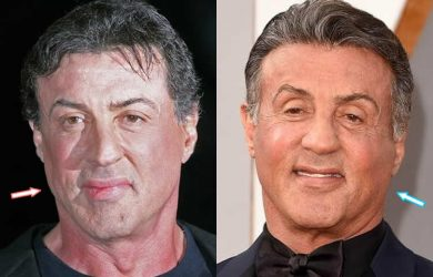 Sylvester Stallone's face before facelift and botox?